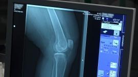 W wyniku pandemii tysiące chorych na osteoporozę pozostają bez pomocy. Lekarze i pacjenci apelują o proste zmiany umożliwiające diagnostykę i leczenie [DEPESZA]